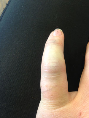 My painful, throbbing pinky.