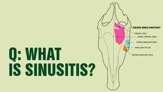 Thumbnail for What is Sinusitis?